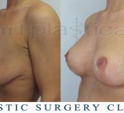 Breast enlargement with mastopexy