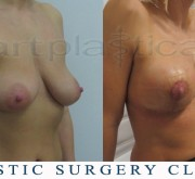 Breast enlargement with mastopexy - A few days after surgery