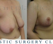 Breast Reduction - After 2 months