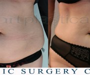 Liposuction - before and after pictures