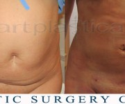 Abdominal liposuction -  1 day after surgery - Beauty Group - Artplastica