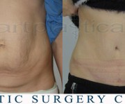 Tummy Tuck - Beauty Group - Artplastica