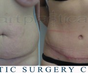 Tummy Tuck - After 2 months