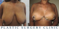 Breast reduction - before and after surgery