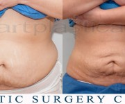 liposuction -  Beauty Group - Artplastica