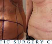 Tummy Tuck - Beauty Group