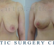 Breast reduction 3 weeks after operation