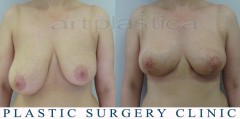 Breast reduction - before and 3 weeks after surgery