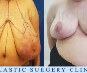 Breast Reduction - Beauty Group