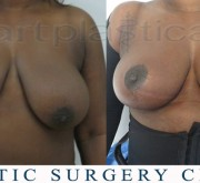 Breast uplift - mastopexy