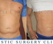 Beauty Group -Artplastica - liposuction before, after
