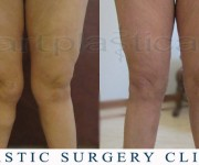 Liposuction knees - Artplastica Beauty Group