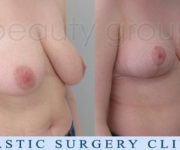 Breast Reduction - 2 months after surgery - Beauty Group
