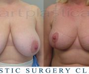 Breast reduction -6 weeks after surgery