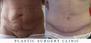 Abdominoplasty (Tummy Tuck) - before and 2 weeks after