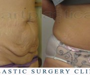 Abdominoplasty (Tummy Tuck) - before and after pictures