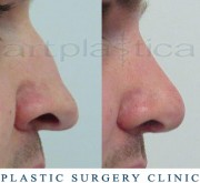 Nose correction with transplantation