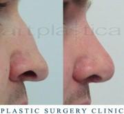 Nose correction with transplantation
