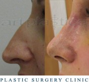 Nose correction -10 days after the operation - Beauty Group - Artplastica
