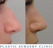 Nose correction - Beauty Group