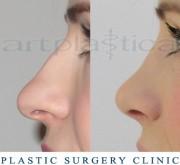 Nose correction (Rhinoplasty)