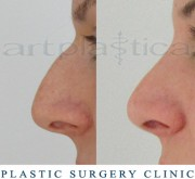 Nose correction (Rhinoplasty)