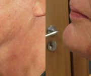 Chin & Neck correction gallery