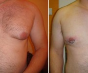 Before and After photo male breast reduction - gynecomastia
