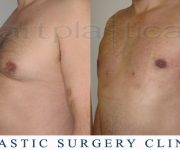 photo male breast reduction - gynecomastia - one day after surgery