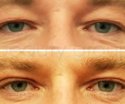 After and before eyelid correction photo