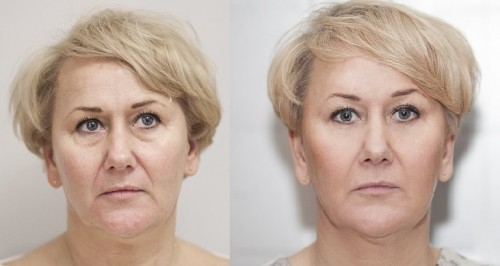 Aesthetic Medicine before after. Juvederm.