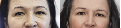 aesthetic-surgery-pictures-juvederm-1