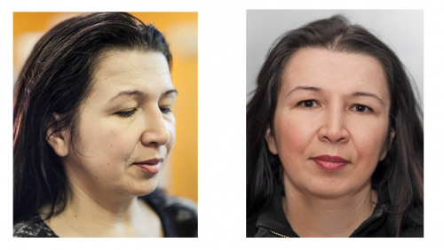 Aesthetic Surgery Pictures. Juvederm