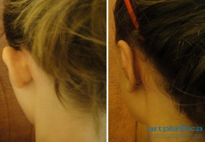 Correction of prominent ears - before and after photos