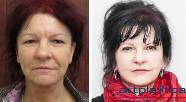 Face lift and upper eyelid