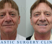 Augusto Mochini - Beauty Group - Face and neck lift