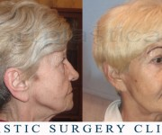 Beauty Group - Artplastica - Face lift and eyelid correction