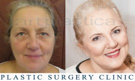 Beauty Group - Artplastica - Face lift and upper eyelid correction