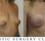 Breast enlargement, nipple correction