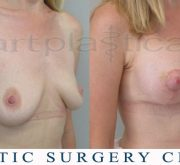 Breast enlargement with mastopexy - 3 weeks after surgery
