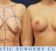 Breast enlargement with mastopexy - Beauty Group