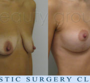 Breast enlargement with mastopexy - 2 months after surgery - Beauty Group