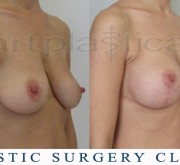 Breast enlargement with mastopexy - Beauty Group - Artplastica