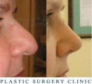 Nose correction (Rhinoplasty) - before and after surgery