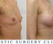 Breast enlargement - before and after pictures - Beauty Group - Clinic in Poland