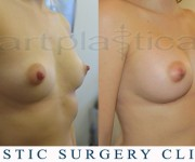 Breast enlargement - before and after pictures