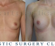 breast enlargement - photo before and after surgery
