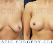 Breast enlargement - photo before and after surgery - Beauty Group