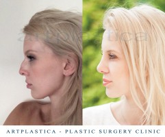 Kinga - nose in profile before and after