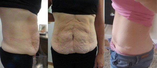 TUMMY TUCK before and after. Plastic Surgery in Poland